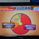 肝臓ガンの原因の80%が2014年の日本では無料で治せる!